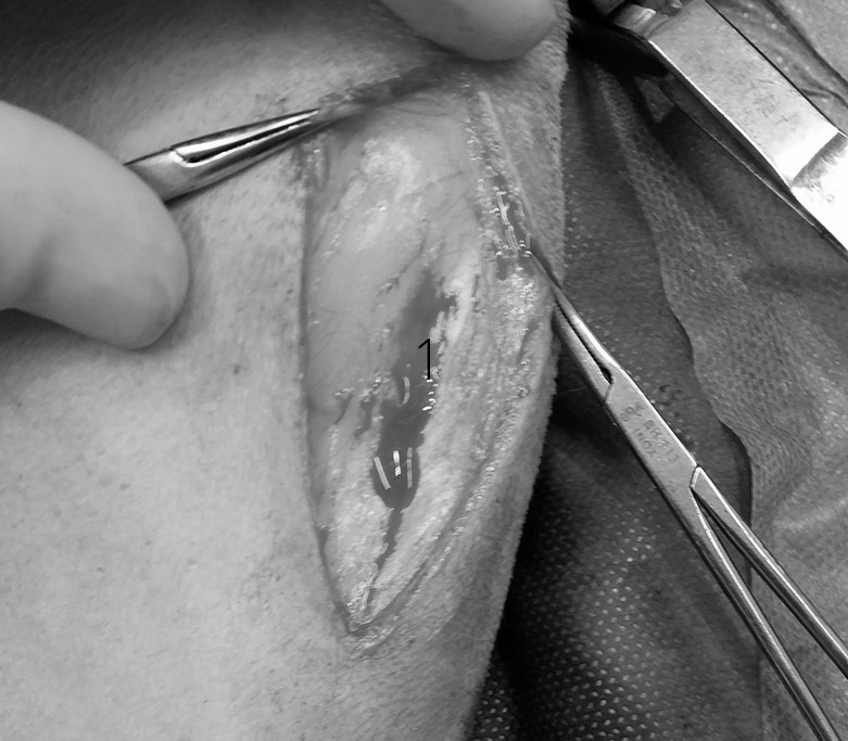 skin incision over medial lh stifle
